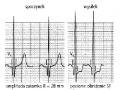 Elektrokardiograficzna próba wysiłkowa (cz. 10)