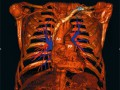 Długotrwała efektywność balonowej angioplastyki tętnic płucnych