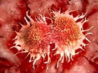 Profilaktyka żylnej choroby zakrzepowo-zatorowej wonkologii