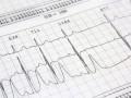 Wytyczne Europejskiego Towarzystwa Kardiologicznego wpigułce <br />Europejskie wytyczne dotyczące rozpoznawania ileczenia przewlekłej niewydolności  serca 2016