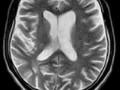 Objawy urojeniowe onagłym początku u29-letniego mężczyzny