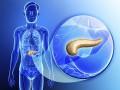 Miejscowo zaawansowany, nieresekcyjny rak trzustki. Podsumowanie aktualnych (2016) zaleceń ASCO