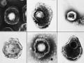 Zapalenie przełyku wywołane przez wirus opryszczki zwykłej