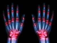 Rehabilitacja reumatologiczna