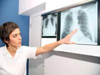 Jakie są konsekwencje palenia tytoniu?