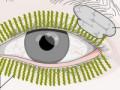 Zapalenie gruczołu łzowego