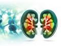 Zespół ucisku lewej żyły nerkowej przez aortę itętnicę krezkową górną