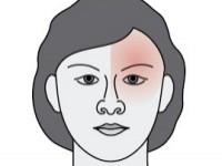 Migrena (oczna)