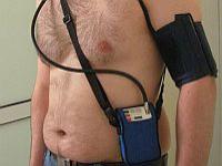 24-godzinny automatyczny pomiar ciśnienia tętniczego (holter)