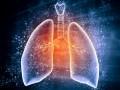 Problemy interdyscyplinarne – zator tętnicy płucnej uchorego na nowotwór