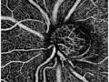 Angio-OCT wdiagnostyce jaskry