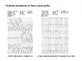 Elektrokardiograficzna próba wysiłkowa (cz. 13)