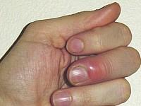 Choroby paznokci