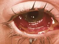 Ostry ból oka