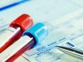 Zastosowanie inhibitorów PARP wleczeniu chorych na raka jajnika