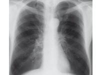 Dynamiczne rozdęcie płuc
