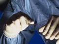 Metody inwazyjnego leczenia żylaków