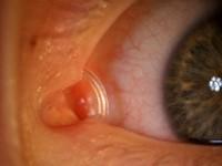 Wrodzona niedrożność dróg łzowych