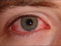 Zaczerwienienie oka (czerwone oko; zespół czerwonego oka)